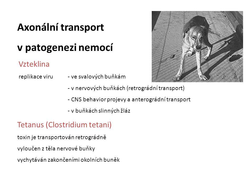 Axonální transport v patogenezi nemocí Tetanus (Clostridium tetani)