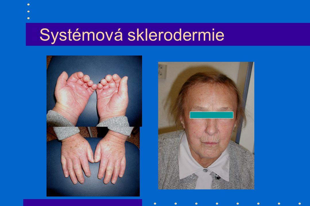 Systémová sklerodermie