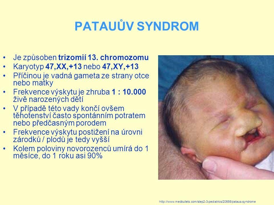 PATAUŮV SYNDROM Je způsoben trizomií 13. chromozomu
