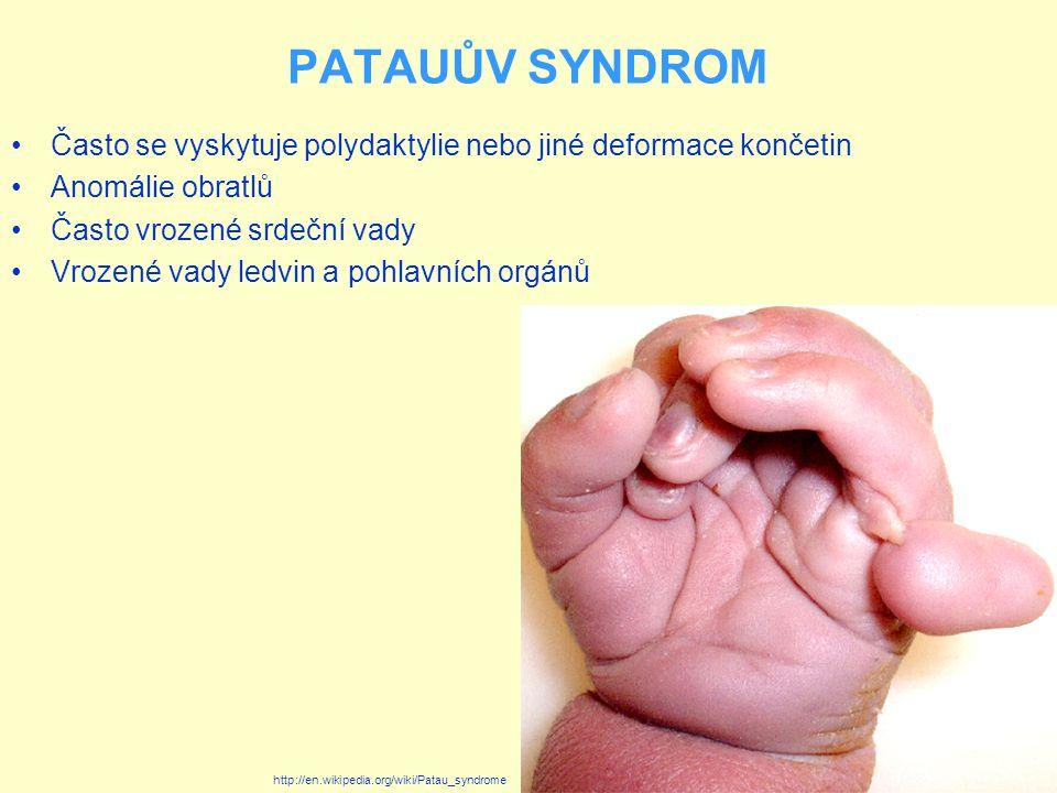 PATAUŮV SYNDROM Často se vyskytuje polydaktylie nebo jiné deformace končetin. Anomálie obratlů. Často vrozené srdeční vady.