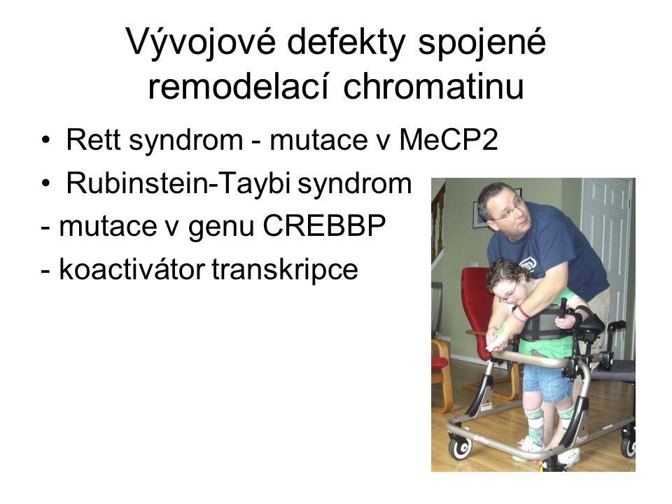 Vývojové defekty spojené remodelací chromatinu