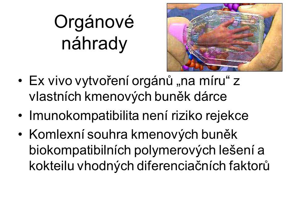 """Orgánové náhrady Ex vivo vytvoření orgánů """"na míru z vlastních kmenových buněk dárce. Imunokompatibilita není riziko rejekce."""