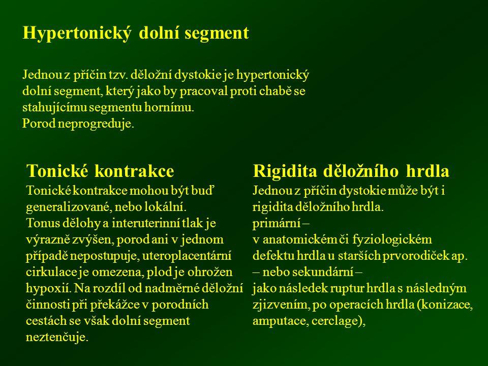 Hypertonický dolní segment