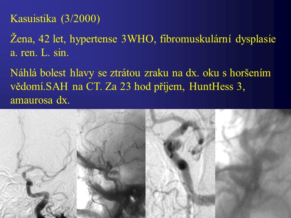 Kasuistika (3/2000) Žena, 42 let, hypertense 3WHO, fibromuskulární dysplasie a. ren. L. sin.