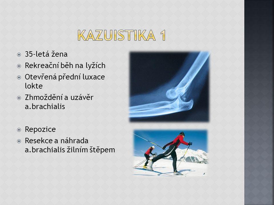 Kazuistika 1 35-letá žena Rekreační běh na lyžích