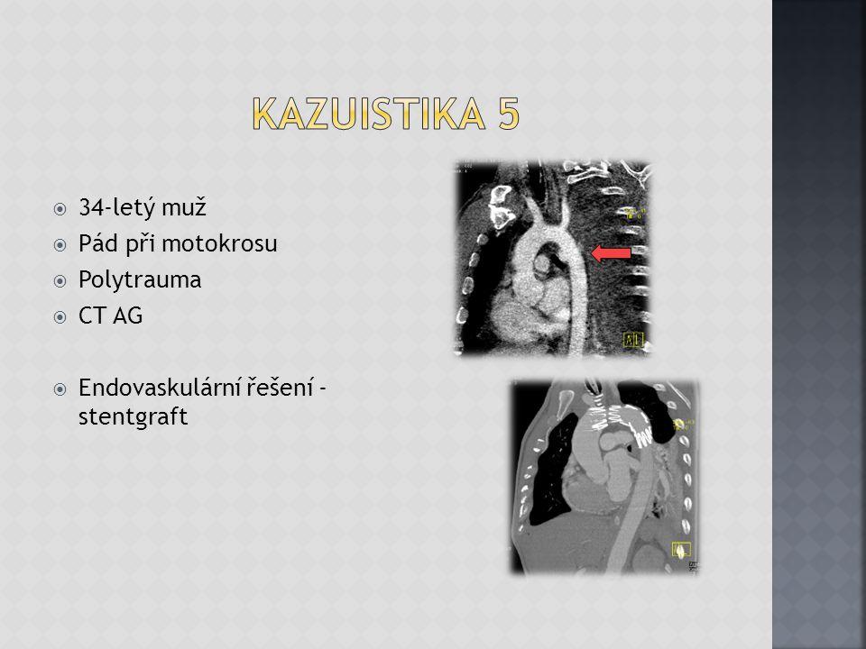 Kazuistika 5 34-letý muž Pád při motokrosu Polytrauma CT AG
