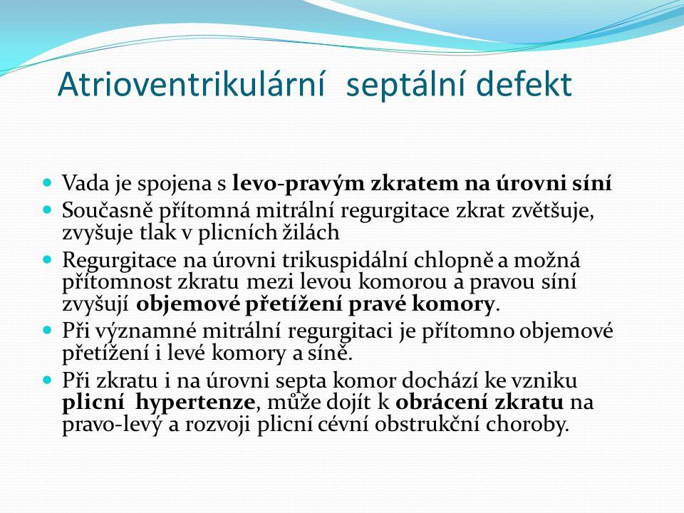 Atrioventrikulární septální defekt