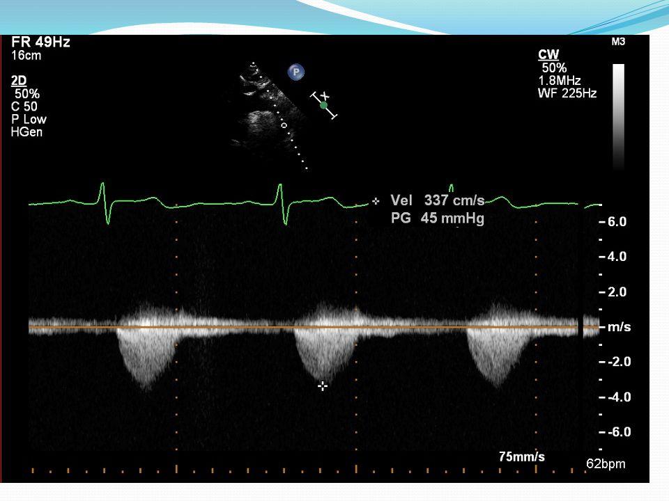 Koarktace aorty, echo vyšetření, projekce suprasternální, kontinuální Doppler proložený descendentní aortou, rychlost toku v koarktaci 337cm/s