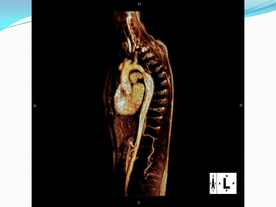 Koarktace aorty, MR 3D rekonstrukce angiografie - zúžení v isthmické části s poststenotickou dilatací