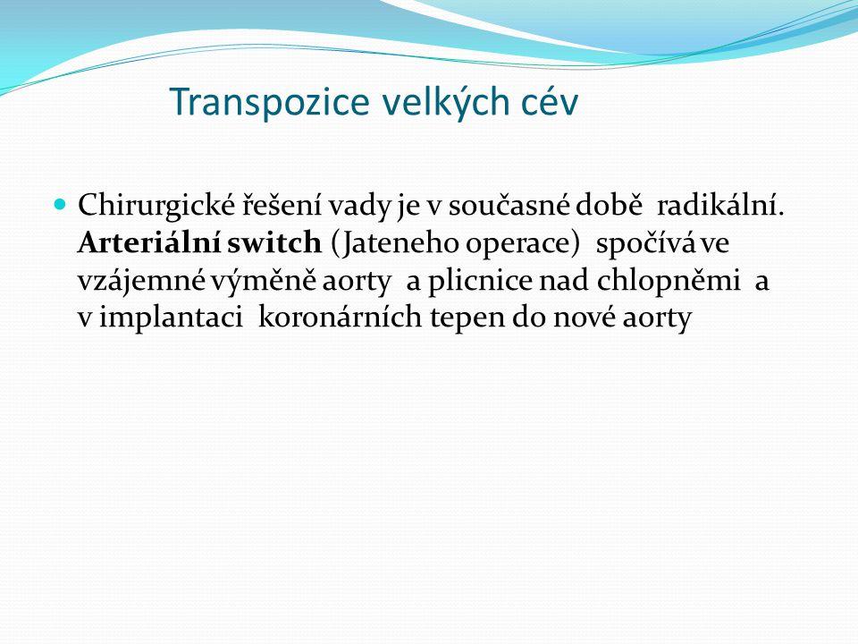 Transpozice velkých cév