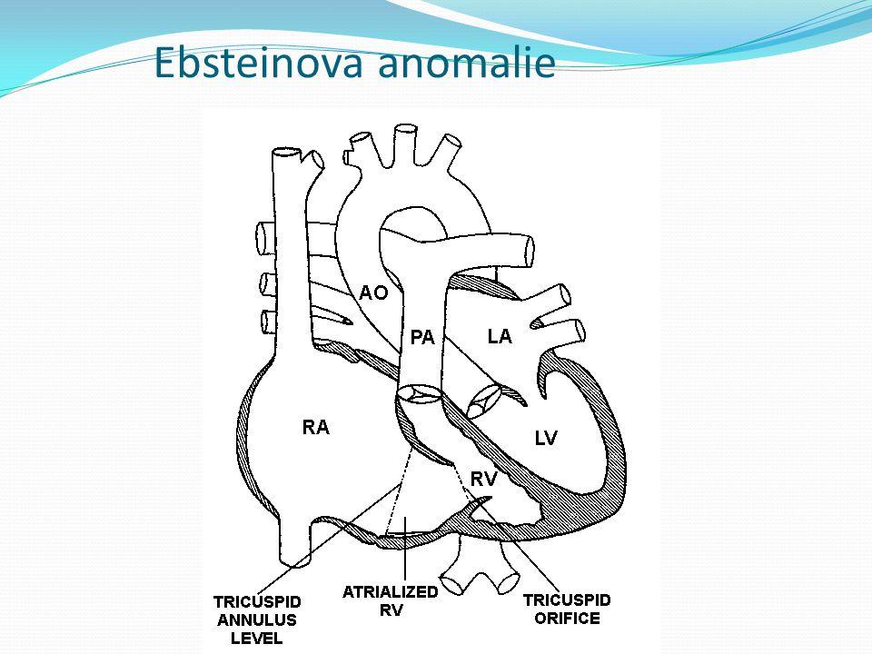 Ebsteinova anomalie