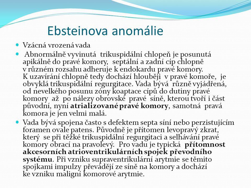 Ebsteinova anomálie Vzácná vrozená vada