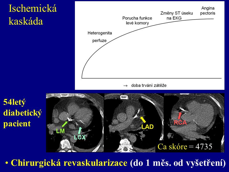 Ischemická kaskáda 54letý diabetický pacient. Ca skóre = 4735.