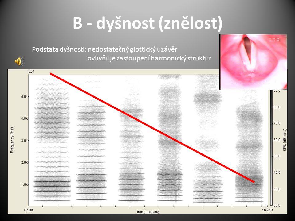 B - dyšnost (znělost) Podstata dyšnosti: nedostatečný glottický uzávěr