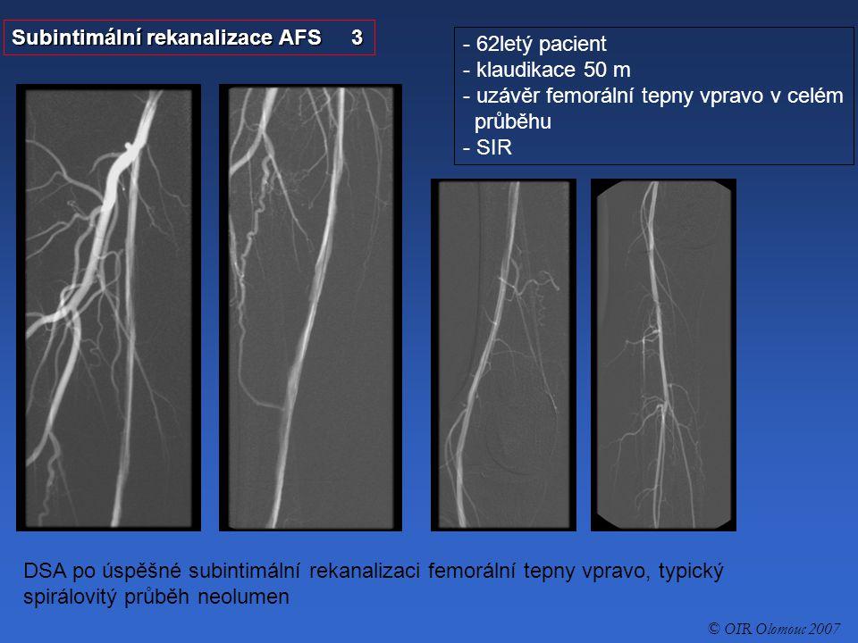 Subintimální rekanalizace AFS 3 - 62letý pacient - klaudikace 50 m