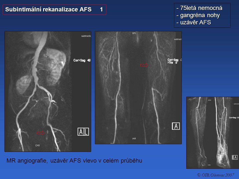 Subintimální rekanalizace AFS 1