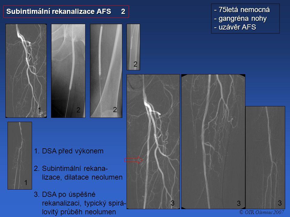 Subintimální rekanalizace AFS 2