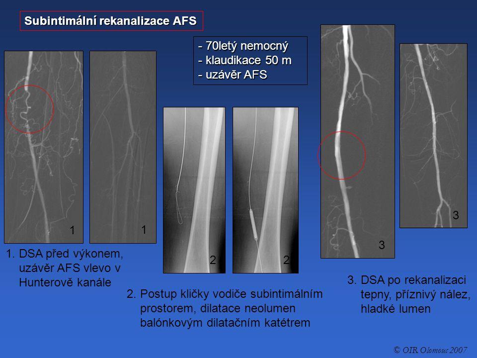 Subintimální rekanalizace AFS