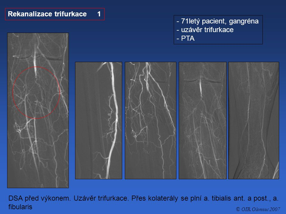 Rekanalizace trifurkace 1 71letý pacient, gangréna uzávěr trifurkace