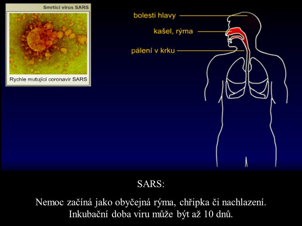 SARS: Nemoc začíná jako obyčejná rýma, chřipka či nachlazení.