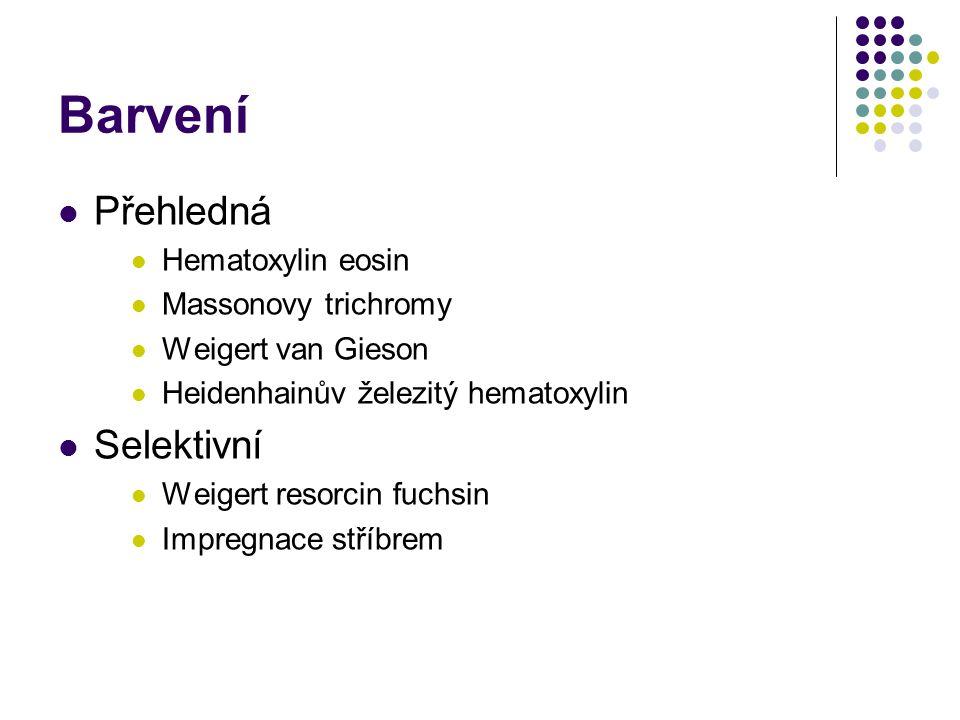 Barvení Přehledná Selektivní Hematoxylin eosin Massonovy trichromy