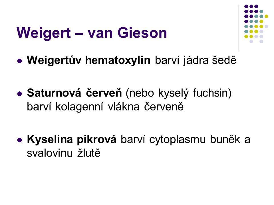 Weigert – van Gieson Weigertův hematoxylin barví jádra šedě