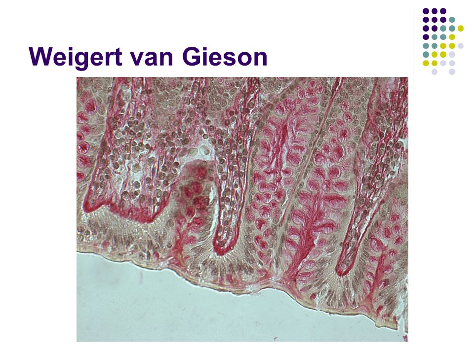 Weigert van Gieson