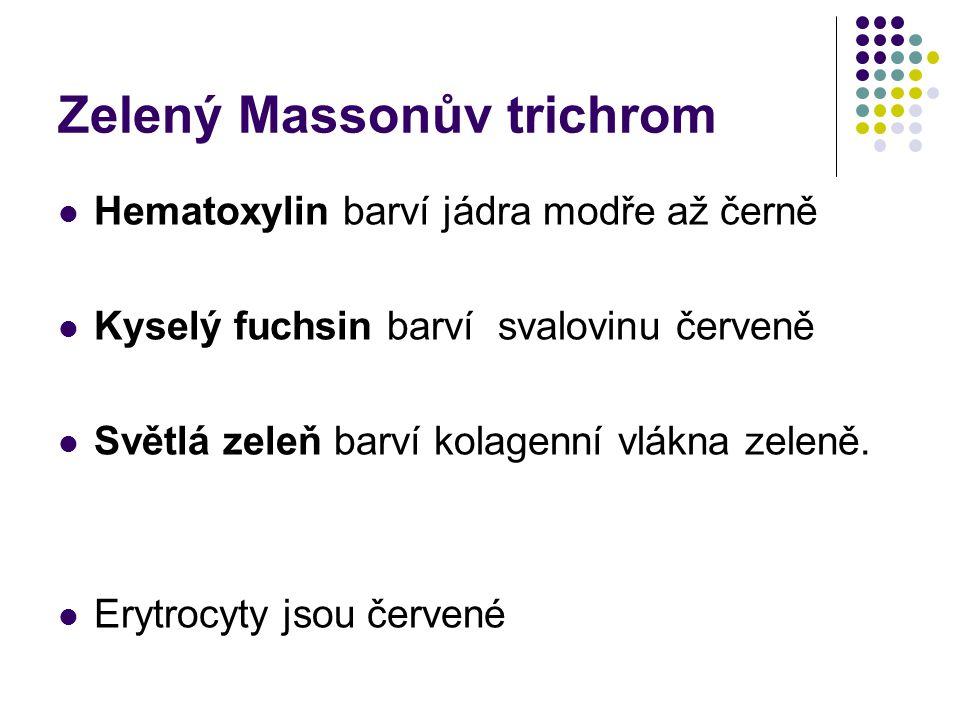 Zelený Massonův trichrom