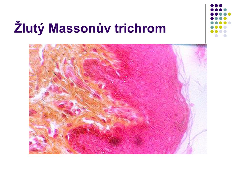 Žlutý Massonův trichrom