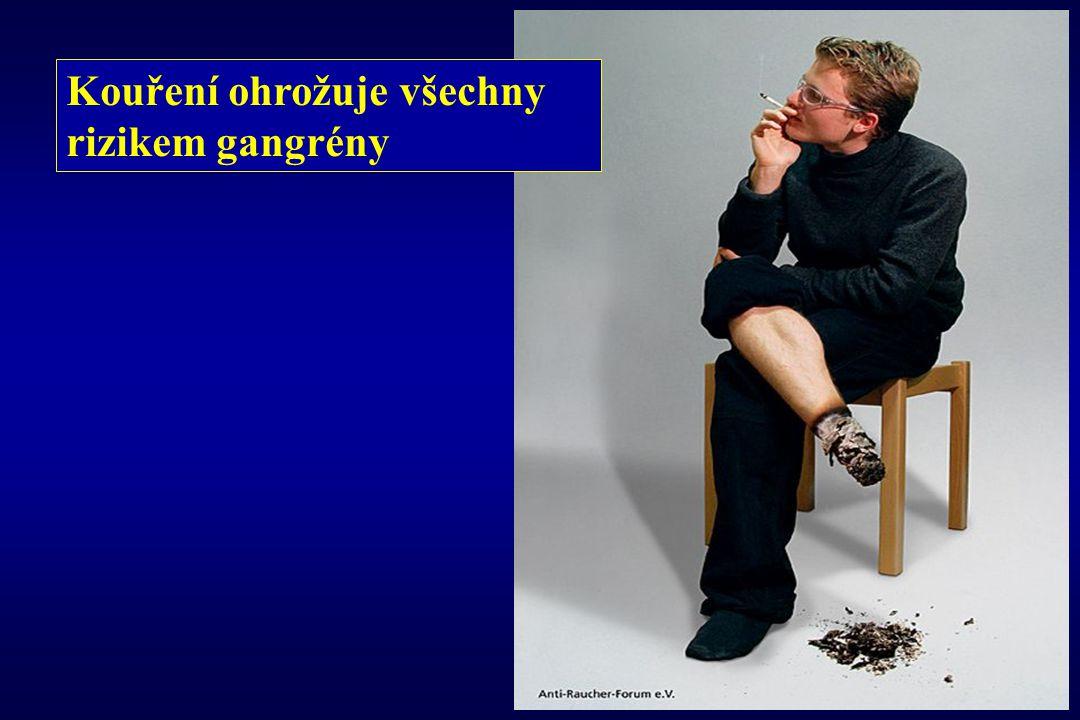 Kouření ohrožuje všechny rizikem gangrény