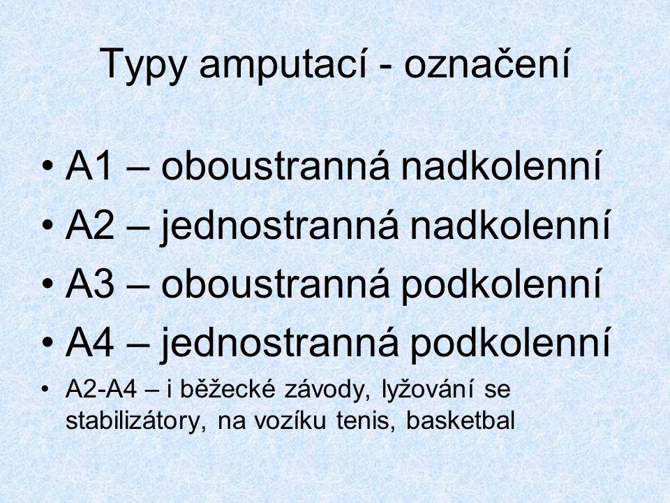 Typy amputací - označení