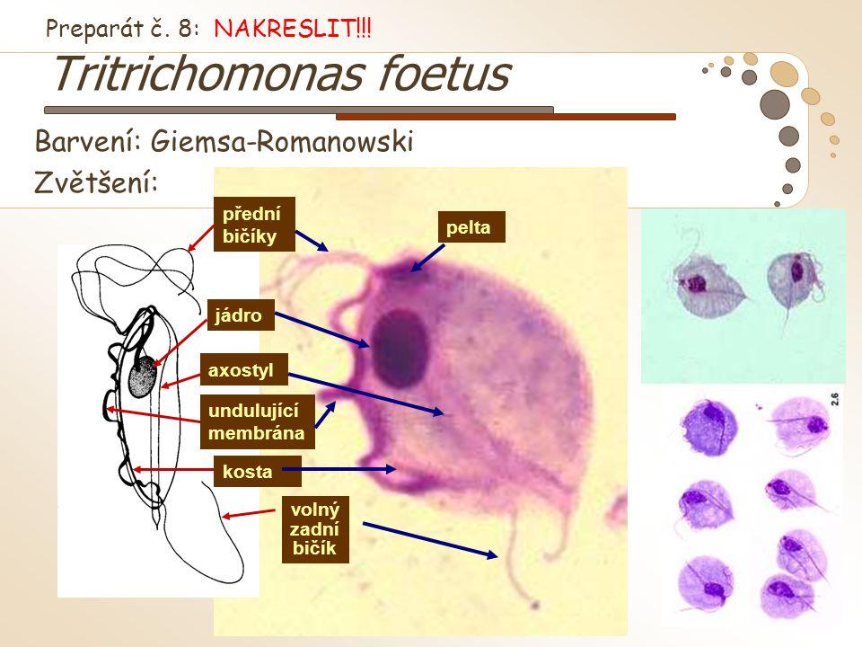 Preparát č. 8: NAKRESLIT!!! Tritrichomonas foetus