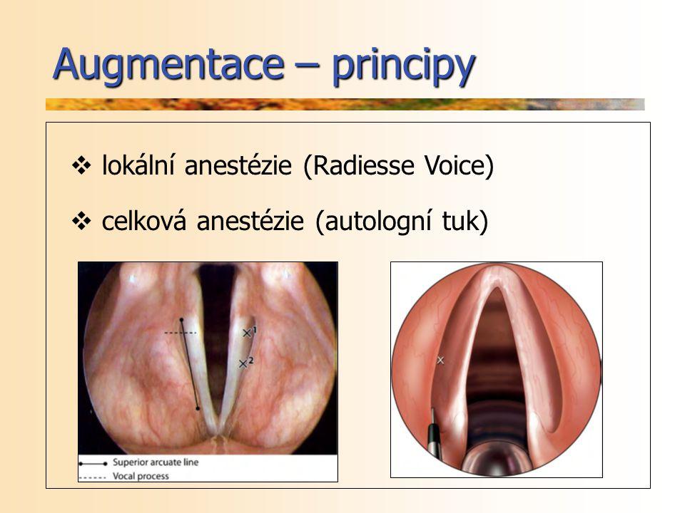 Augmentace – principy lokální anestézie (Radiesse Voice)