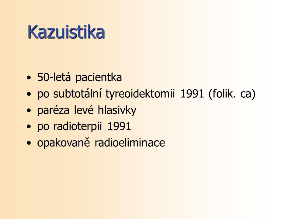 Kazuistika 50-letá pacientka
