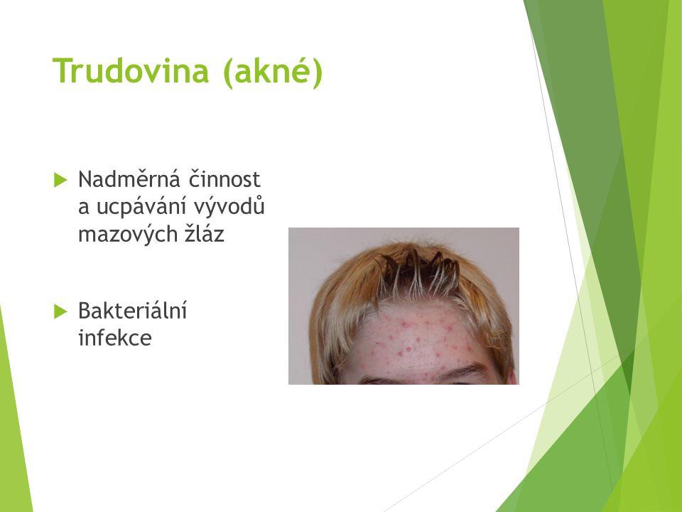 Trudovina (akné) Nadměrná činnost a ucpávání vývodů mazových žláz