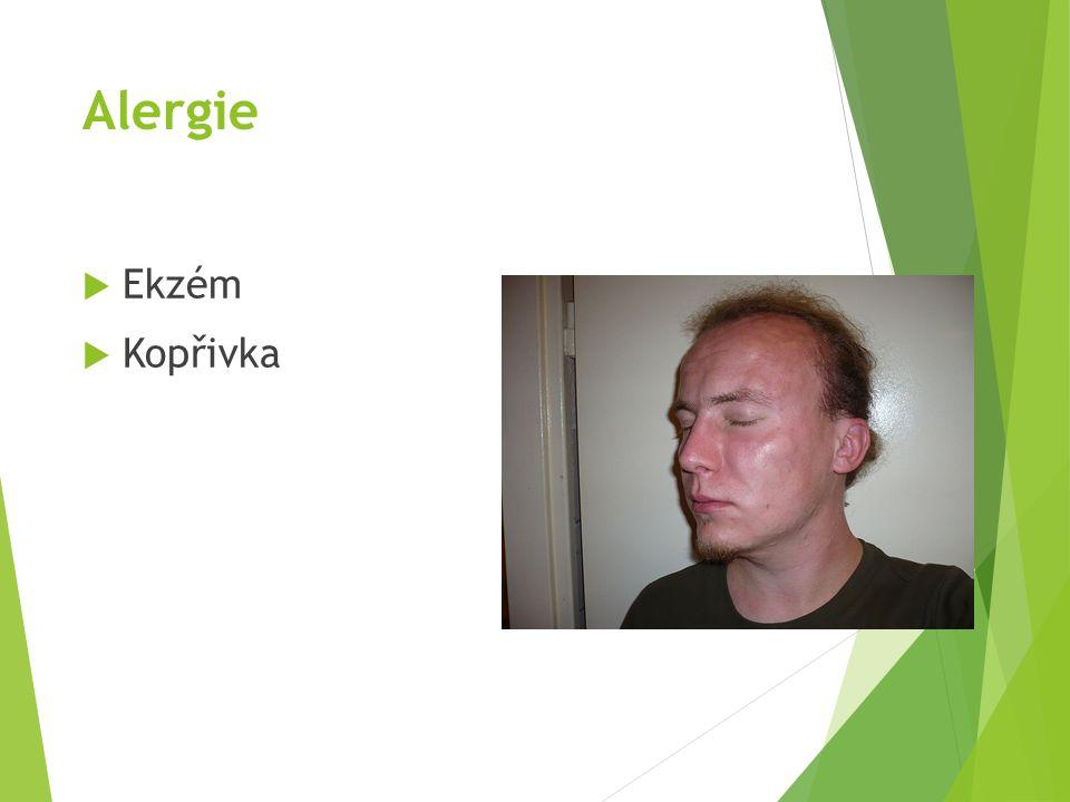 Alergie Ekzém Kopřivka