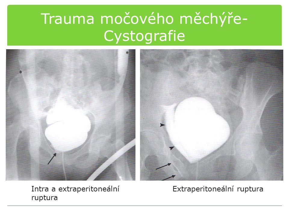 Trauma močového měchýře-Cystografie