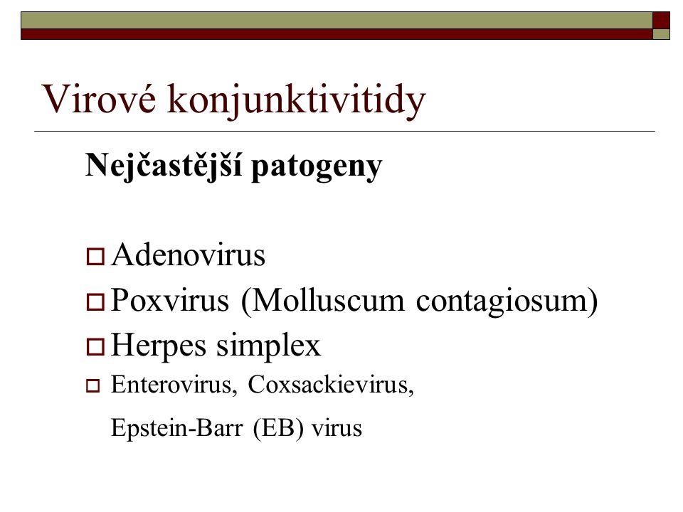 Virové konjunktivitidy
