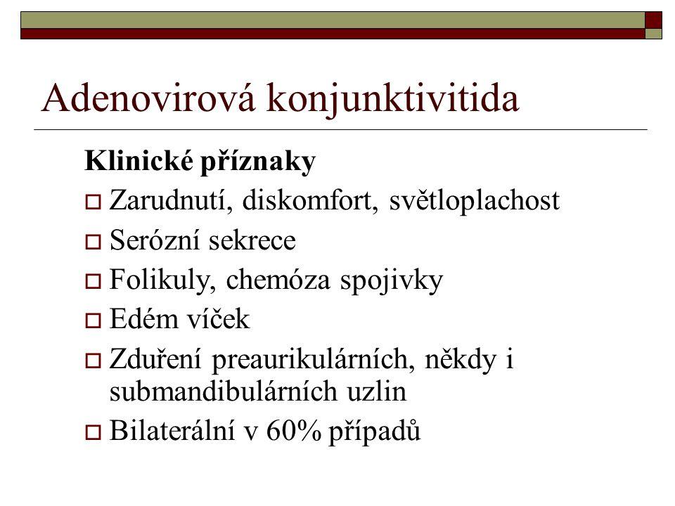 Adenovirová konjunktivitida