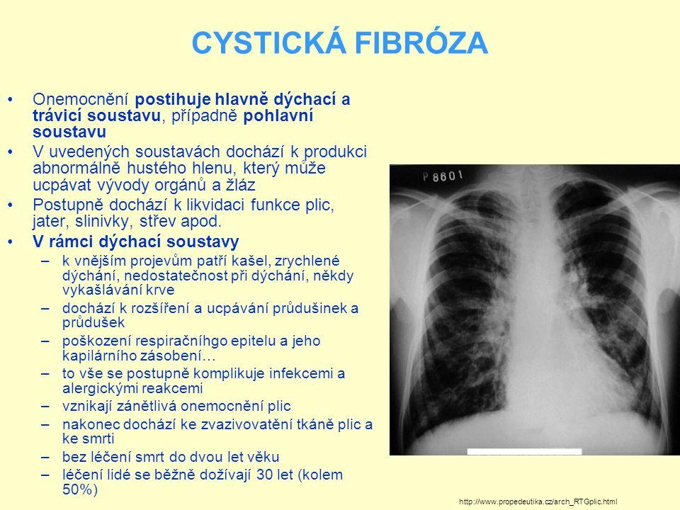 CYSTICKÁ FIBRÓZA Onemocnění postihuje hlavně dýchací a trávicí soustavu, případně pohlavní soustavu.