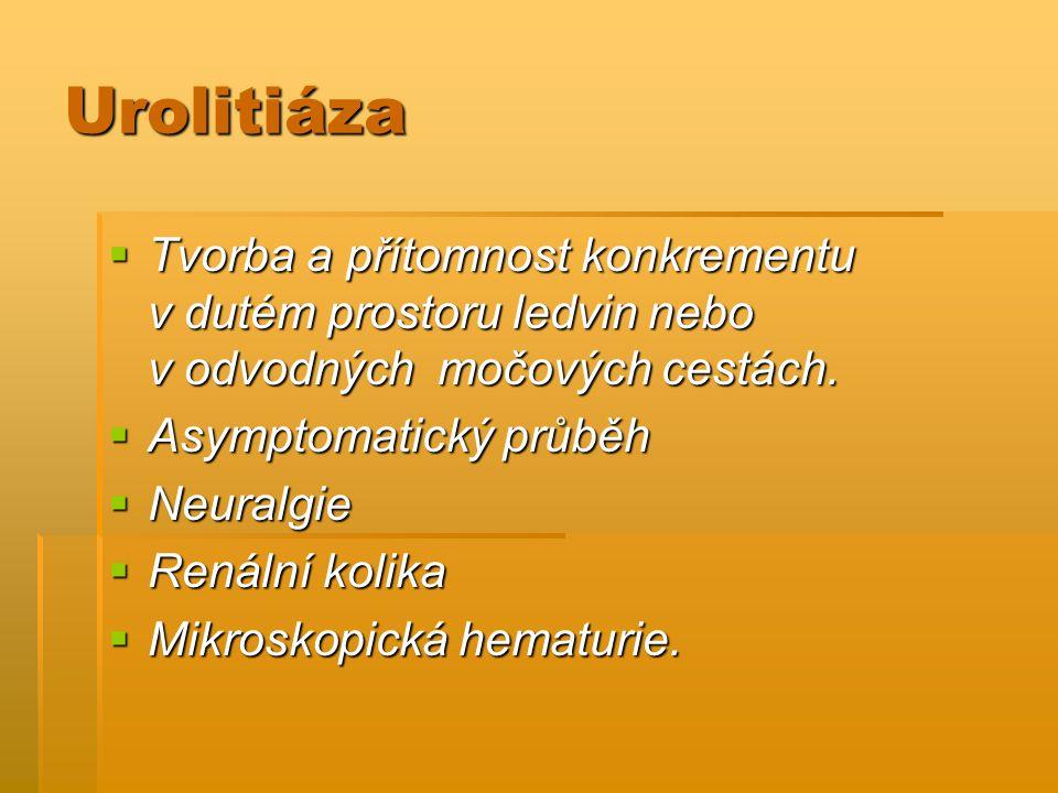 Urolitiáza Tvorba a přítomnost konkrementu v dutém prostoru ledvin nebo v odvodných močových cestách.