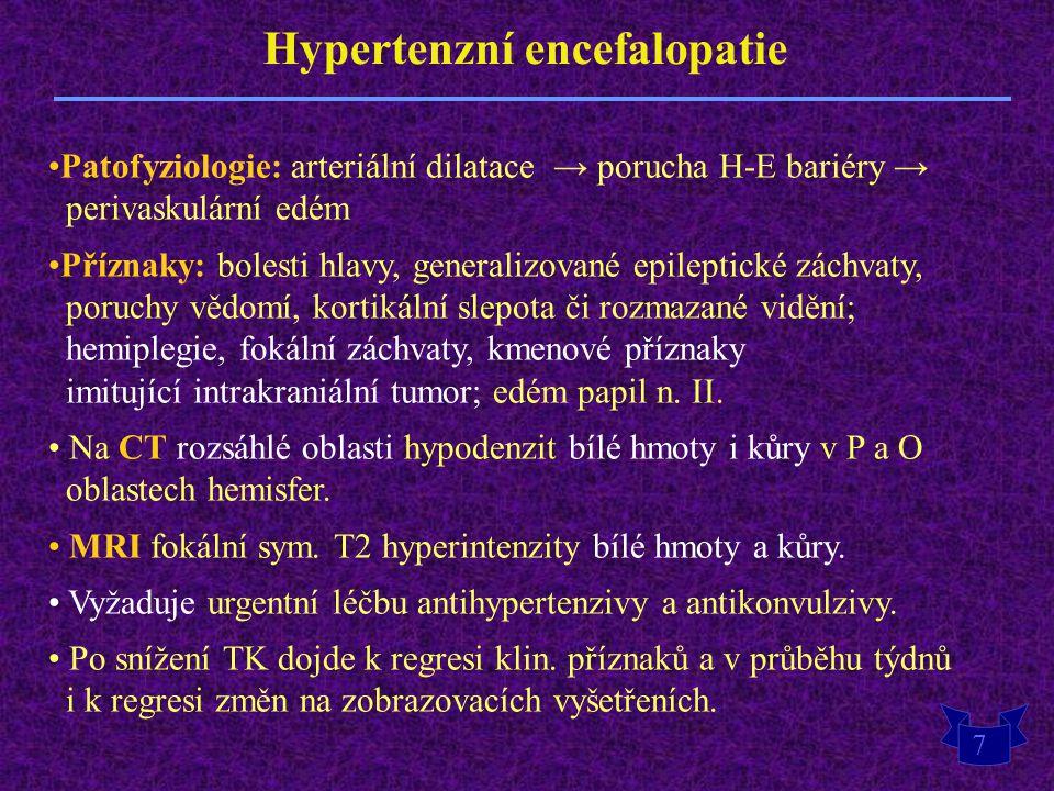 Hypertenzní encefalopatie