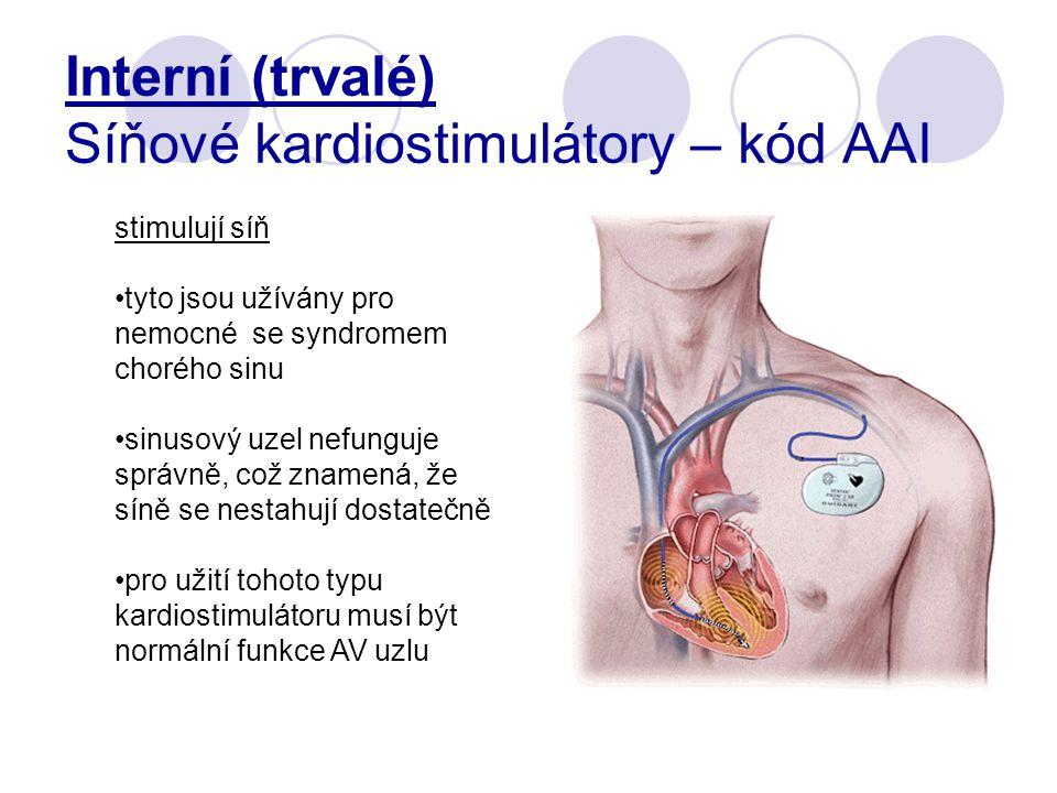 Interní (trvalé) Síňové kardiostimulátory – kód AAI
