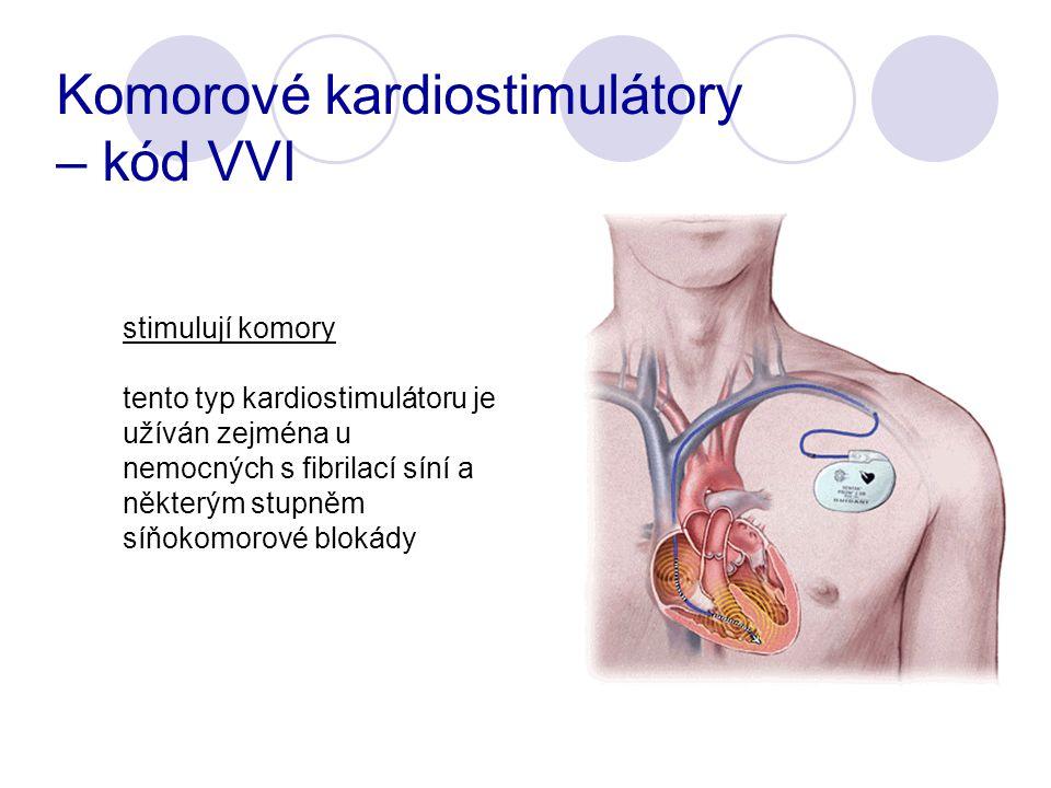 Komorové kardiostimulátory – kód VVI