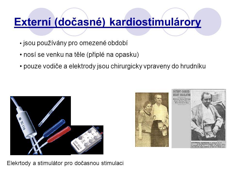 Externí (dočasné) kardiostimulárory