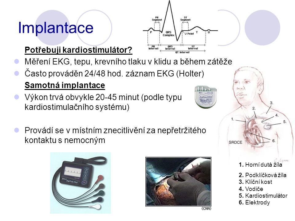 Implantace Potřebuji kardiostimulátor