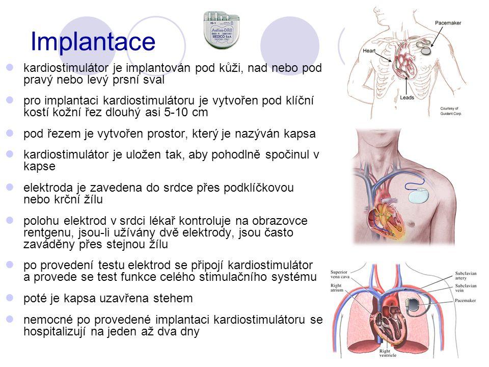 Implantace kardiostimulátor je implantován pod kůži, nad nebo pod pravý nebo levý prsní sval.