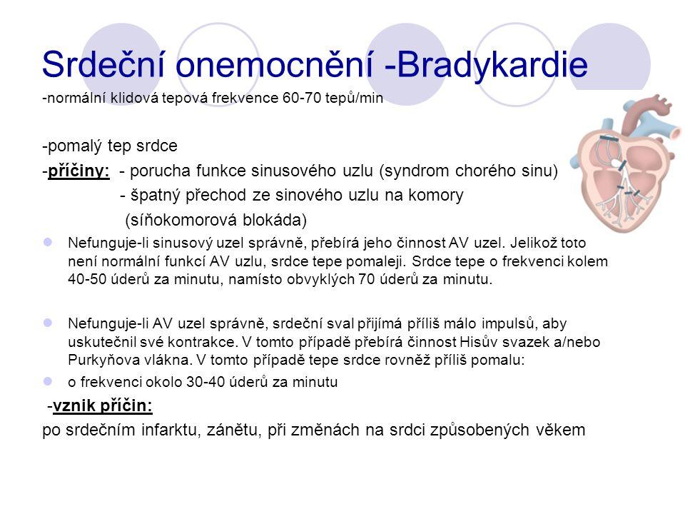 Srdeční onemocnění -Bradykardie