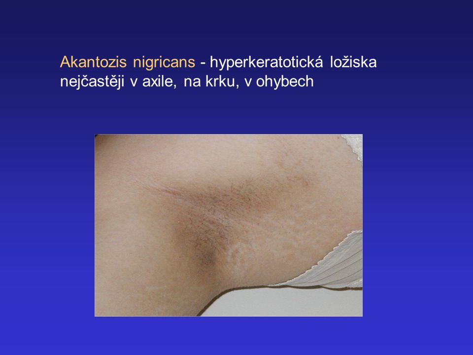 Akantozis nigricans - hyperkeratotická ložiska