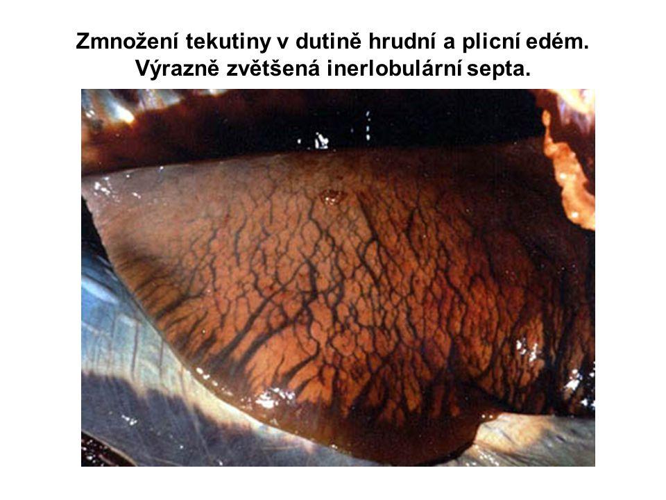 Zmnožení tekutiny v dutině hrudní a plicní edém